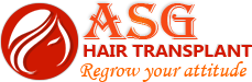 asg | hair transplant in jalandhar